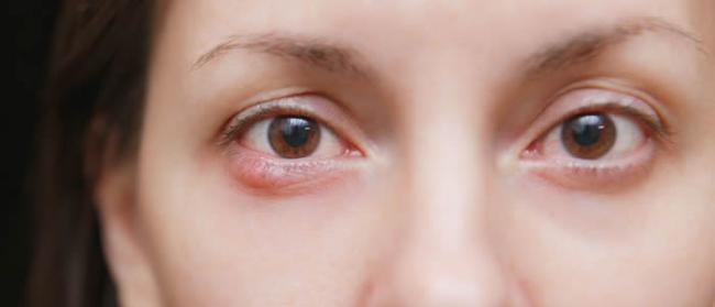 眼科医生Rui Hiramatsu:每天只花三分钟使用Gabor点状图纸进行锻炼就能改善视力
